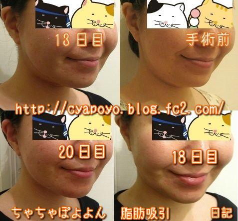20150425094526.jpg