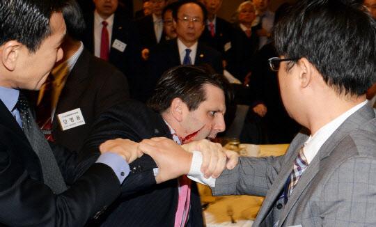 【韓国】リッパート駐韓米大使、顔の右側長さ11センチ、深さ3センチ、約80針の縫合手術を行う