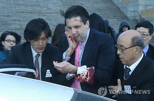 おい、これ。完全にテロ事件やないか【韓国】リッパート駐韓米大使、顔の右側長さ11センチ、深さ3センチ、約80針の縫合手術を行う