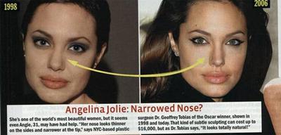 ◆ ジョリーも実は鼻の整形を!?