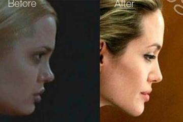 アンジェリーナ・ジョリー 整形検証画像◆2006年時、鼻の整形か?