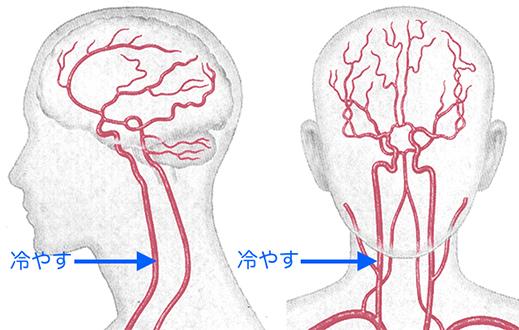 「頭痛冷やす」の画像検索結果