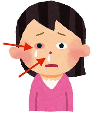 詰まり 頭痛 鼻