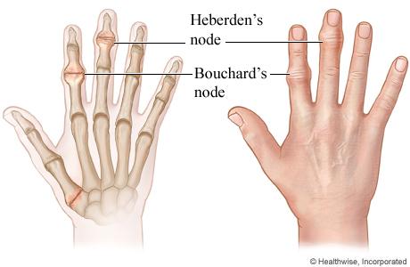 Heberden