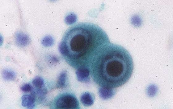 CMV 染色像