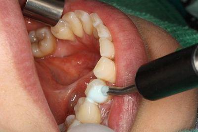 歯髄 電気検査