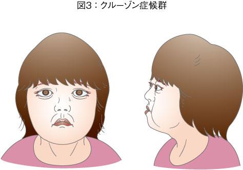 クルーゾン症候群