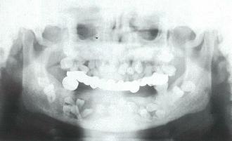 鎖骨頭蓋異形成症 kagaku