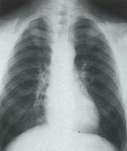 鎖骨頭蓋異形成症_xray02