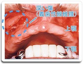 義歯性線維種