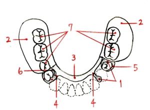 partial-denture 構造