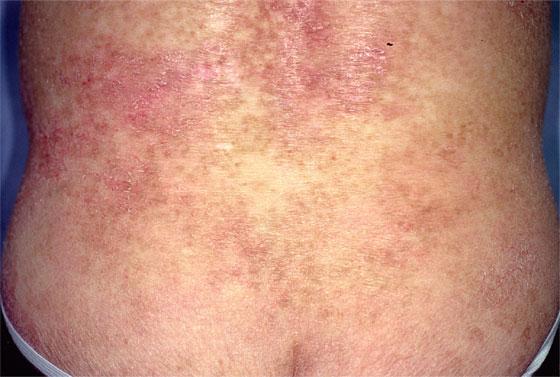 菌状息肉症 macro