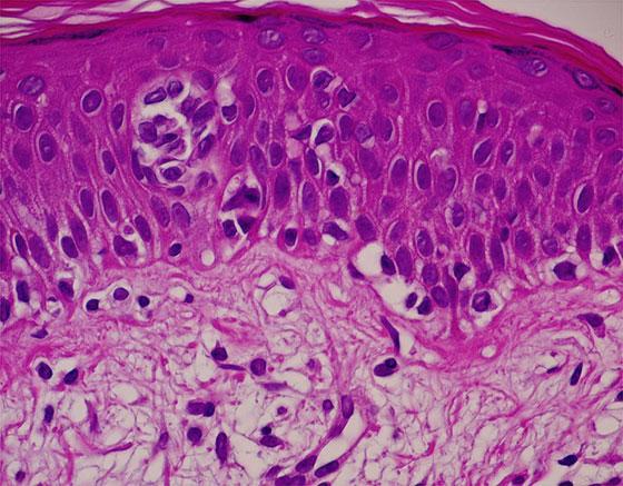 菌状息肉症 組織