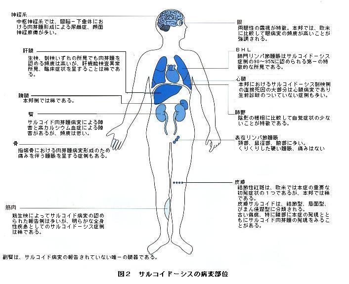 sarukoido-sisu zenntai