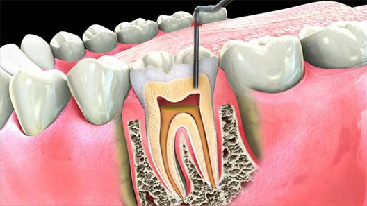 Endodontics.jpg