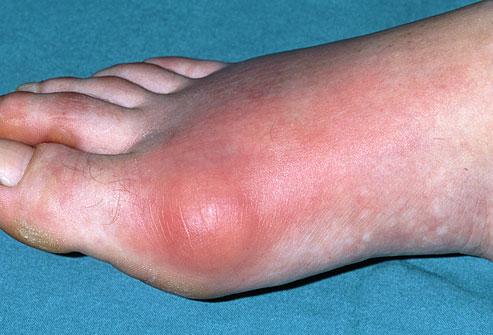 gout toe