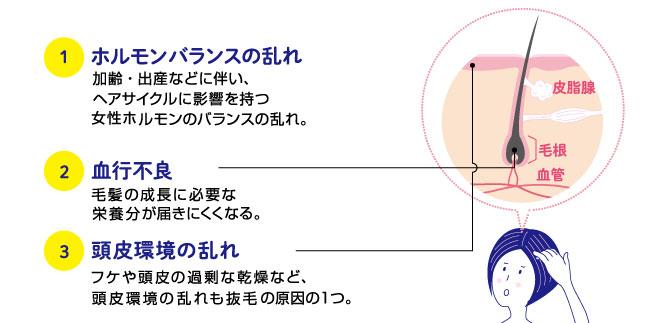 女性の薄毛・抜け毛の原因4