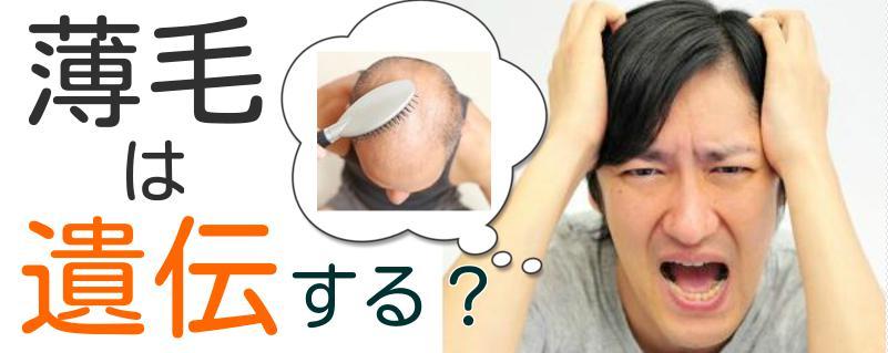 薄毛の悩み5
