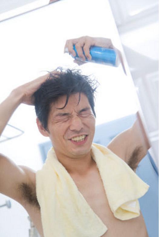 薄毛の悩み4