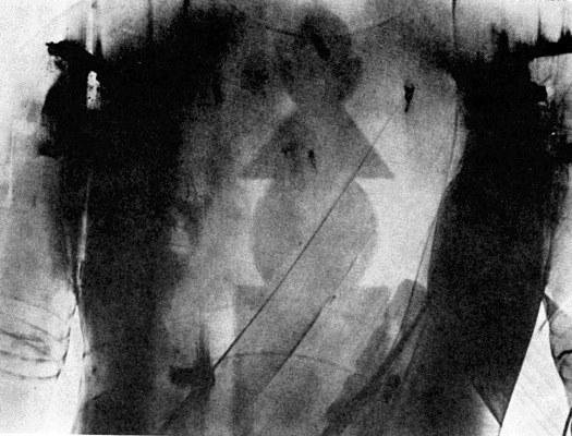 願成就院・衿羯羅童子胸部のX線写真(五輪形の銘札が見える)