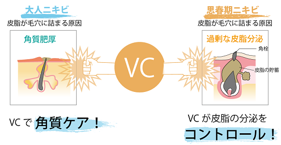 VC200pic-1.png