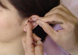 耳のつぼに金粒を貼り込んでいきます。
