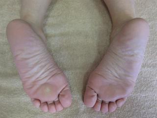 左足のタコ
