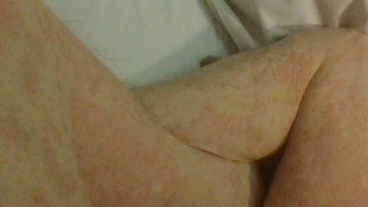 蕁麻疹_150220 (6)