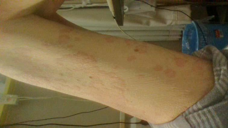 蕁麻疹_150220 (7)