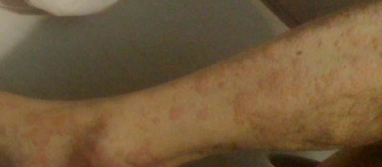 蕁麻疹_150220 (11)