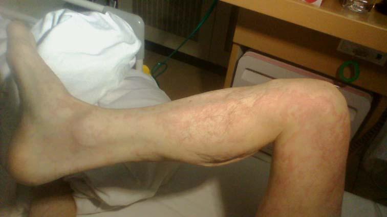 蕁麻疹_150220 (9)