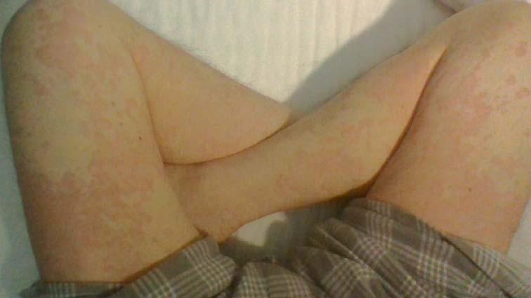 蕁麻疹_150220 (12)