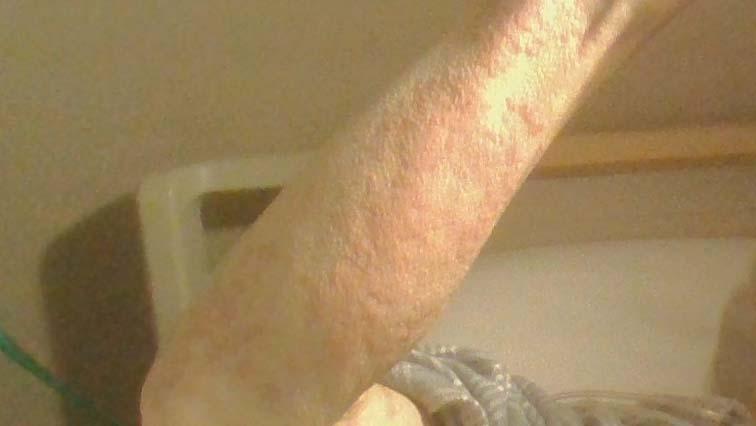 蕁麻疹_150220