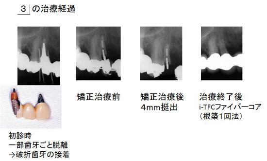 右上犬歯の治療経過