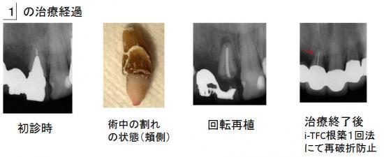 右上前歯の治療経過