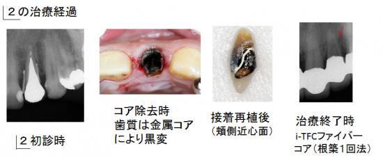 左上前歯の治療経過