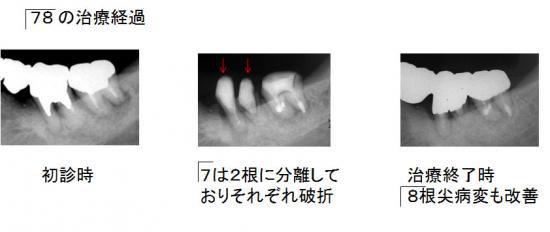 左下奥歯の治療経過