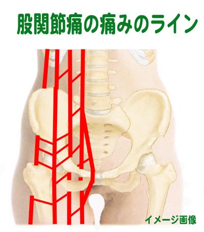 kokansetu-line2.jpg