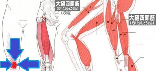 和式トイレで痛めた大腿四頭筋をイラスト図示