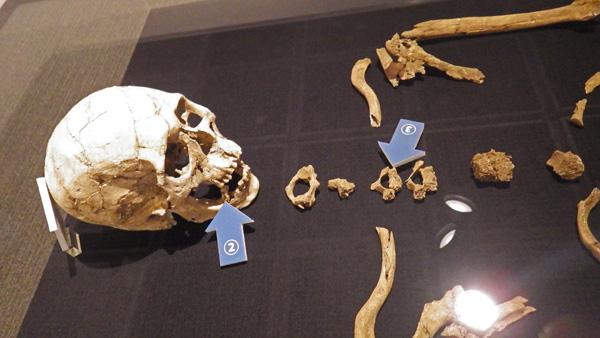 発掘された縄文人の骨