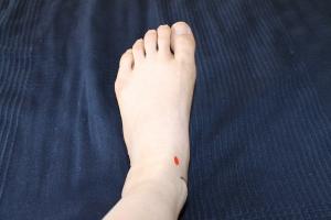中封(赤)足背から