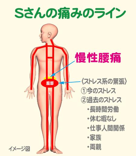 Sさん腰痛