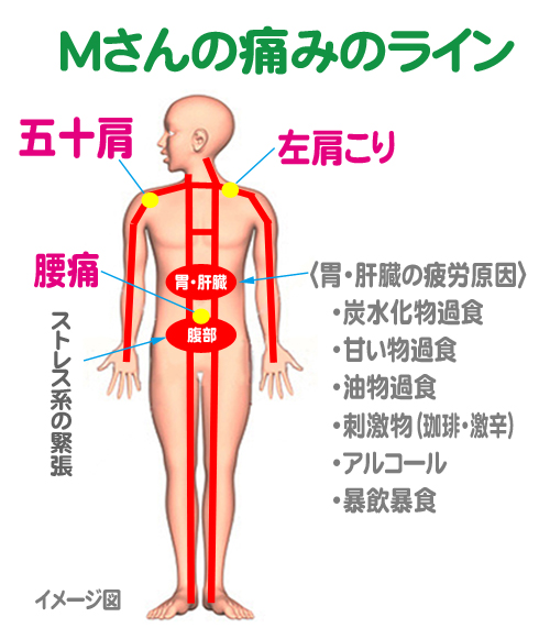 M-Line1.jpg
