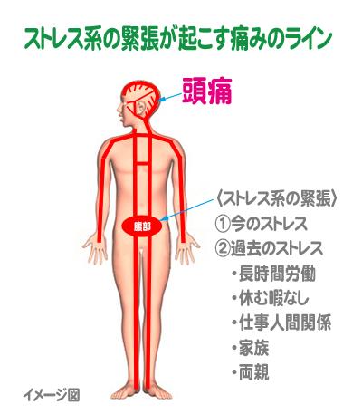 zutu-sutoresu-line.jpg